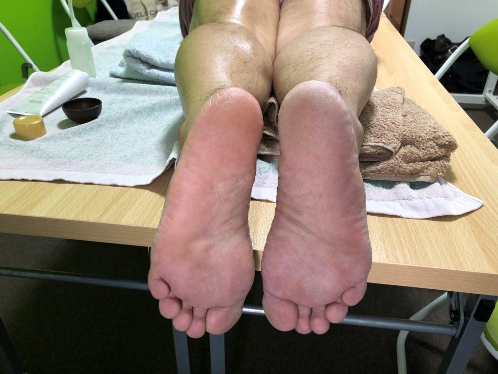 生き返った足と死んだままの足